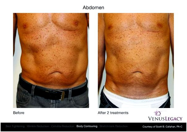 Awesome lipo laser lipolysis & tightening-naperville/plainfield/yorkville illinois ll be fully awake through
