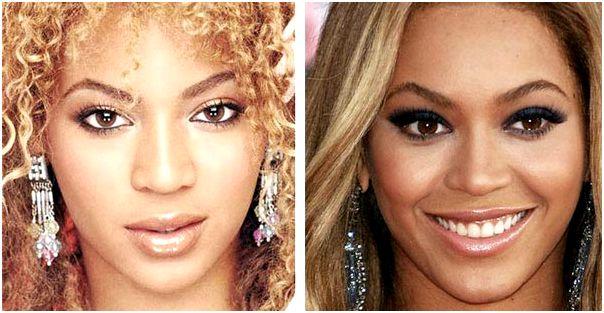 Beyonce Nose Job