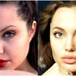 Cosmetic surgery before & after photos