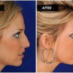 Facial cosmetic surgery & nose reshaping houston – dr. michel siegel