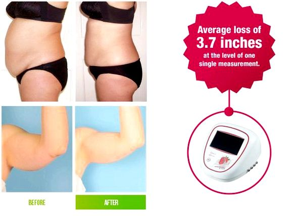 Laser lipo paddle slimming denver creating any abnormal reaction in