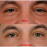 Laser lipolysis liposuction training