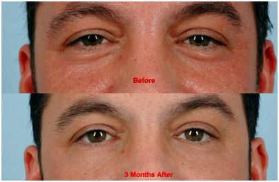 Laser Blepharoplasty Training
