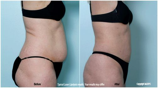 laser_lipolysis2