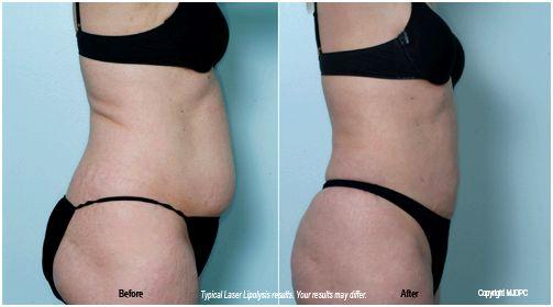 Laser lipolysis, lumberton, plastic surgery, andrew a. hendricks, md, topdocs.com