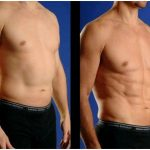 Laser lipolysis or laser lipo in new york city