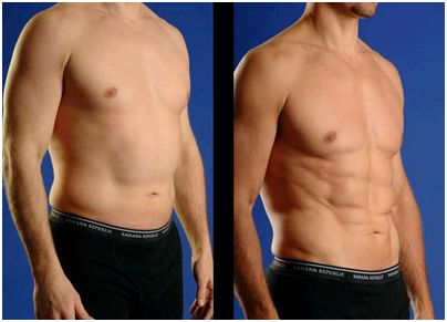 Laser lipolysis or laser lipo in new york city through the procedure, you