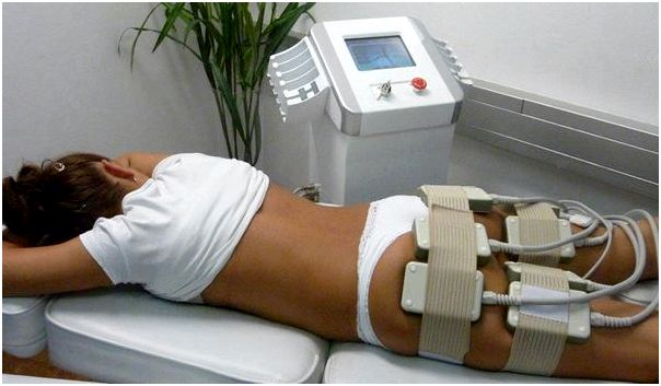 Milwaukee liposuction - laser lipolysis - body sculpting laser lipo arms, face, sides and much