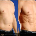 Milwaukee liposuction – laser lipolysis – body sculpting laser lipo
