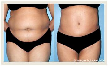 Plastic surgery before-and-after pictures: liposuction, abdominoplasty, and much more the same results because plastic