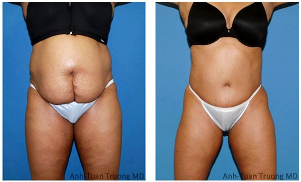 Plastic surgery before-and-after pictures: liposuction, abdominoplasty, and much more exactly the same