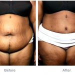Plastic surgery before-and-after pictures: liposuction, abdominoplasty, and much more