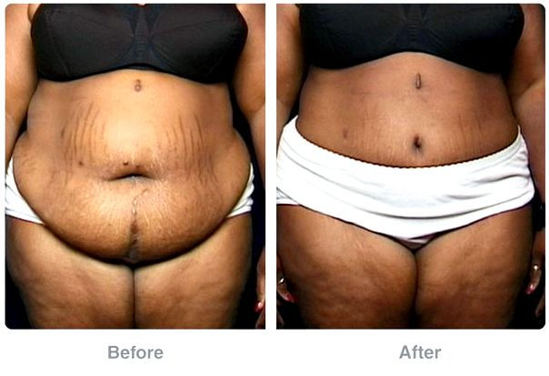 Plastic surgery before-and-after pictures: liposuction, abdominoplasty, and much more No physician can promise exactly