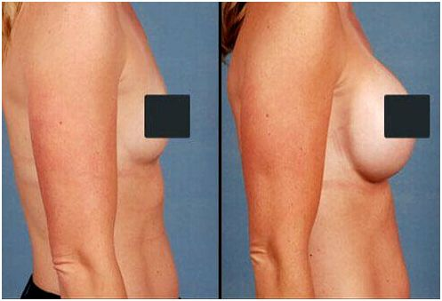 Photos of before and after breast implants.