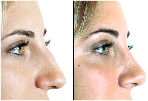 Photos before and after a nose job.