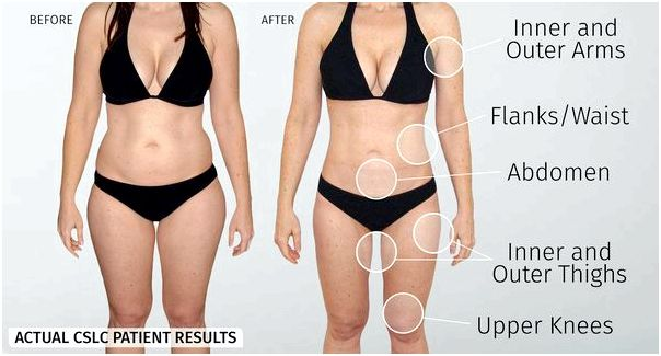 Smartlipo triplex - laser lipolysis Getting the body