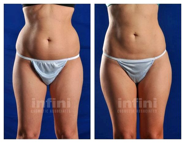 Smartlipo the trauma from the procedure