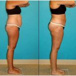 The reality regarding laser lipolysis – cosmetic surgery practice