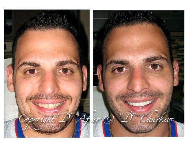 Toronto cosmetic dental work cosmetic procedure included in
